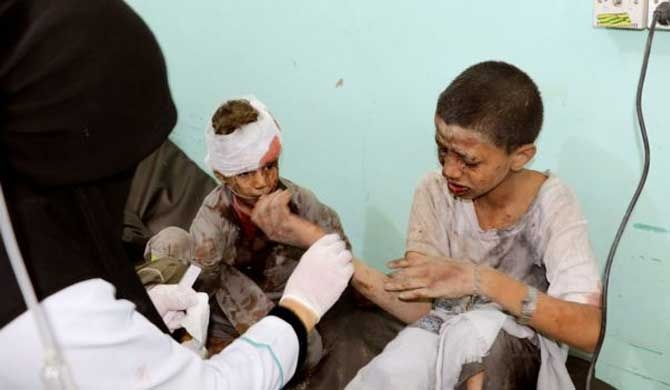 29 children killed in Yemen market bomb