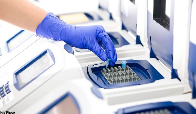 MoH yet to get 7 PCR machines released
