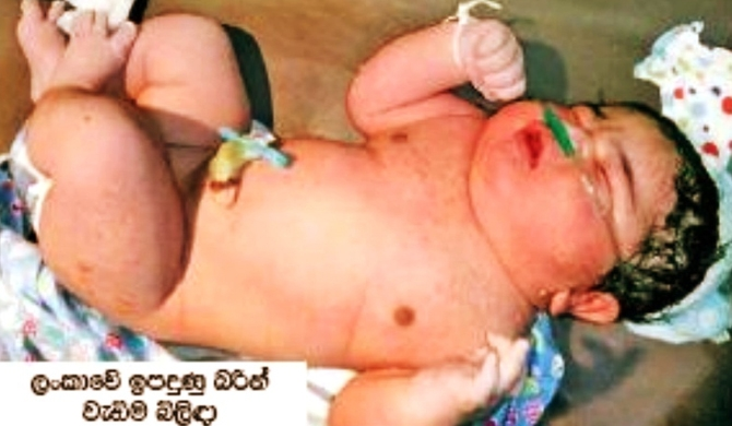 Baby with heaviest birth weight is from Balapitiya